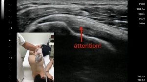 Subacromial bursa -injections-